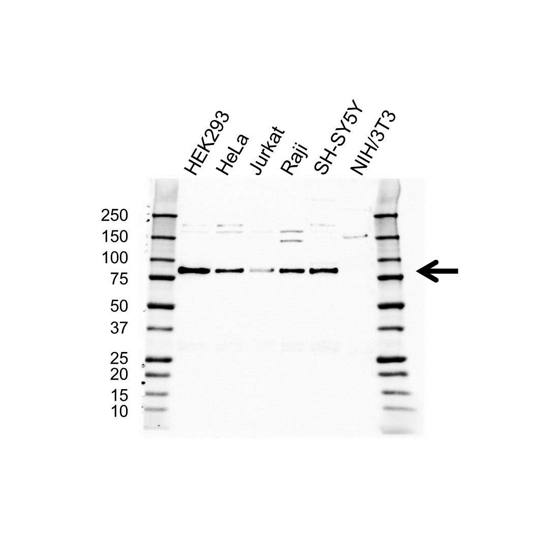 Anti EPN1 Antibody (PrecisionAb Polyclonal Antibody) gallery image 1