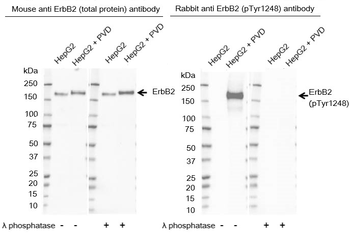 Anti ErbB2 (pTyr1248) Antibody thumbnail image 1