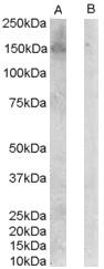 Anti ErbB3 (C-Terminal) Antibody gallery image 1