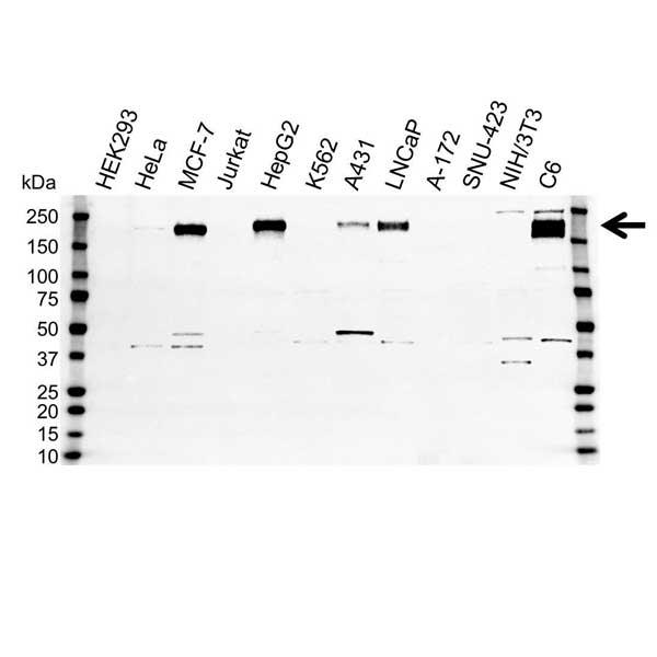 Anti ErbB3 Antibody (PrecisionAb Polyclonal Antibody) gallery image 1