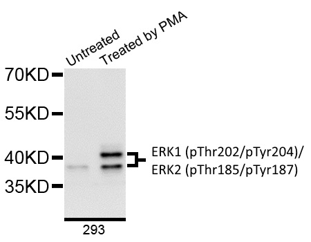 Anti ERK1 (pThr202/pTyr204)/ERK2 (pThr185/pTyr187) Antibody gallery image 1
