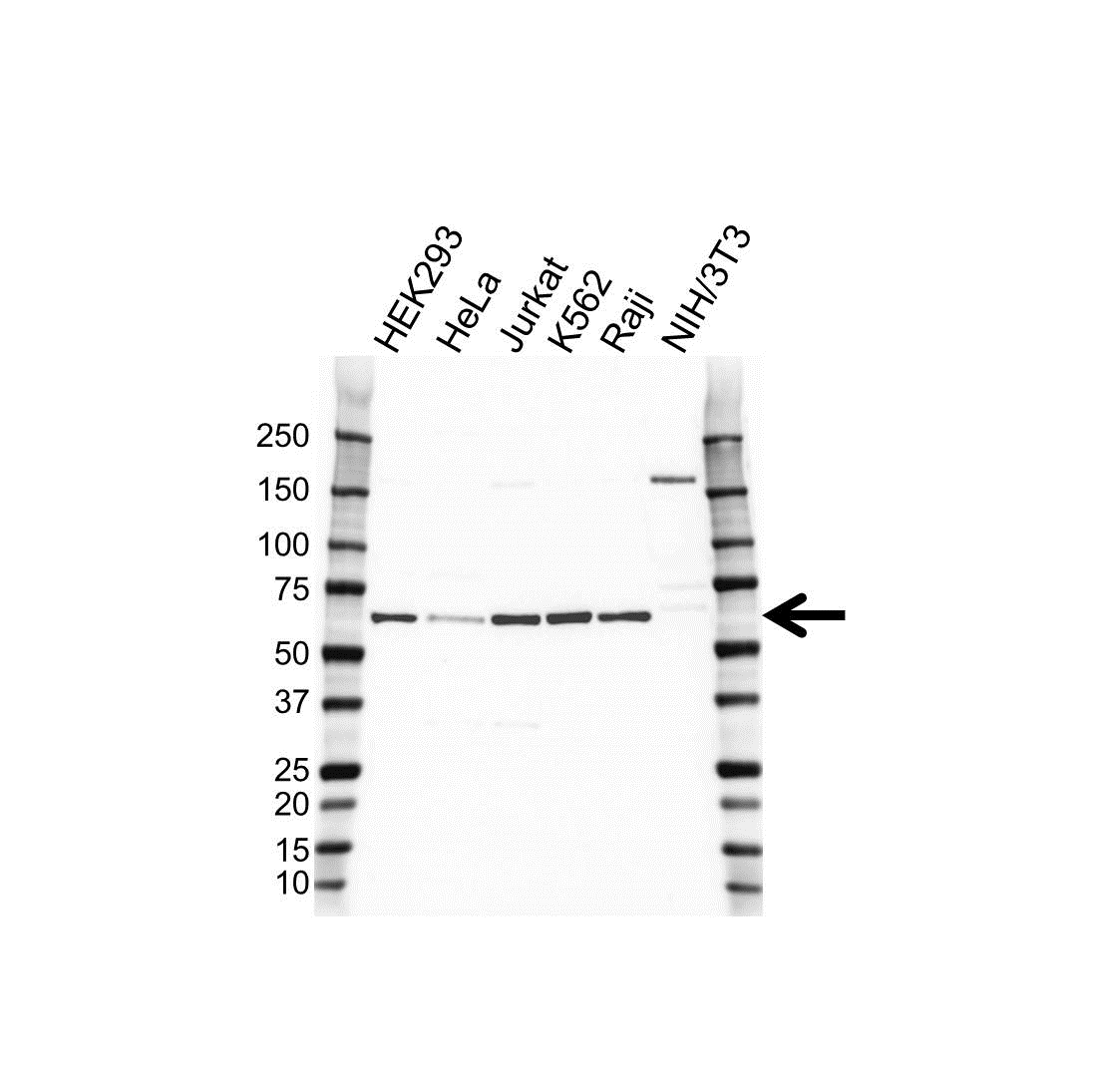 Anti Erythropoietin Receptor Antibody (PrecisionAb Polyclonal Antibody) gallery image 1