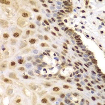 Anti ETS1 Antibody thumbnail image 5