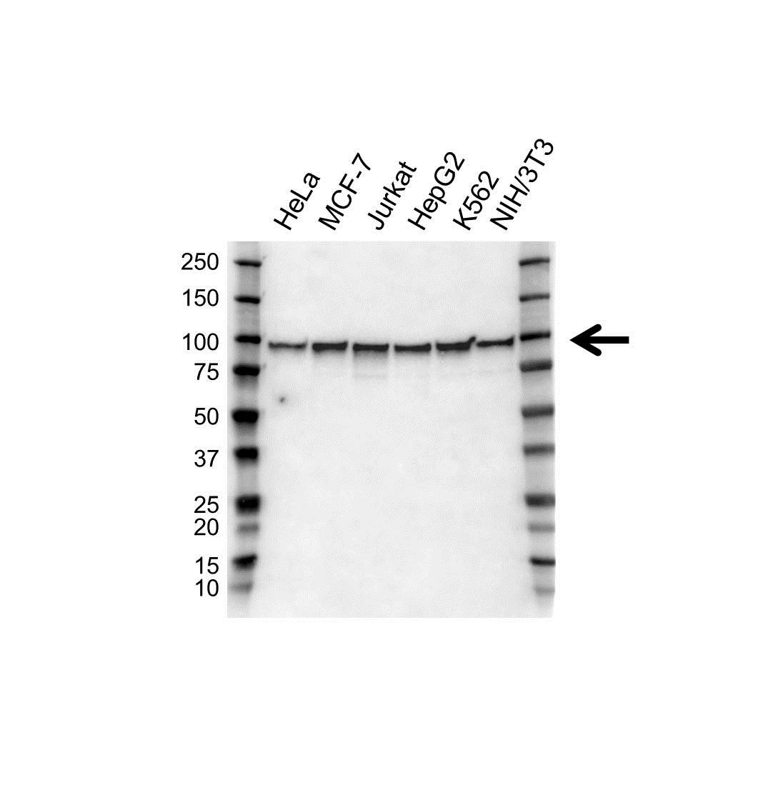 Anti EWSR1 Antibody (PrecisionAb Polyclonal Antibody) gallery image 1
