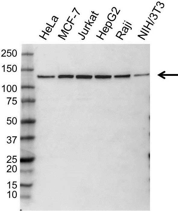 Anti EXPORTIN-5 Antibody (PrecisionAb Polyclonal Antibody) gallery image 1