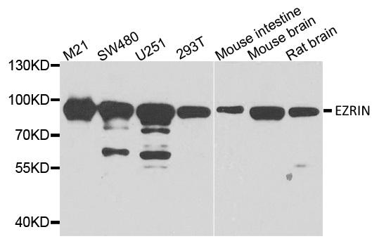 Anti Ezrin Antibody thumbnail image 1