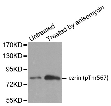 Anti Ezrin (pThr567) Antibody gallery image 1