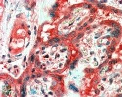 Anti Human FAIM1 Antibody thumbnail image 2