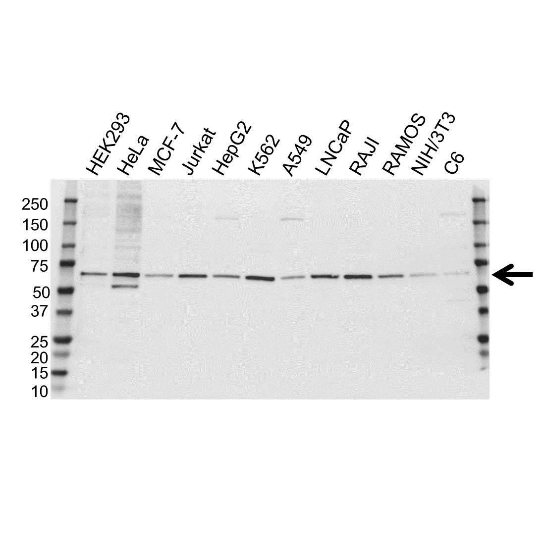 Anti FANCG Antibody (PrecisionAb™ Polyclonal Antibody) gallery image 1