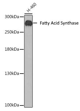 Anti Fatty Acid Synthase Antibody thumbnail image 1