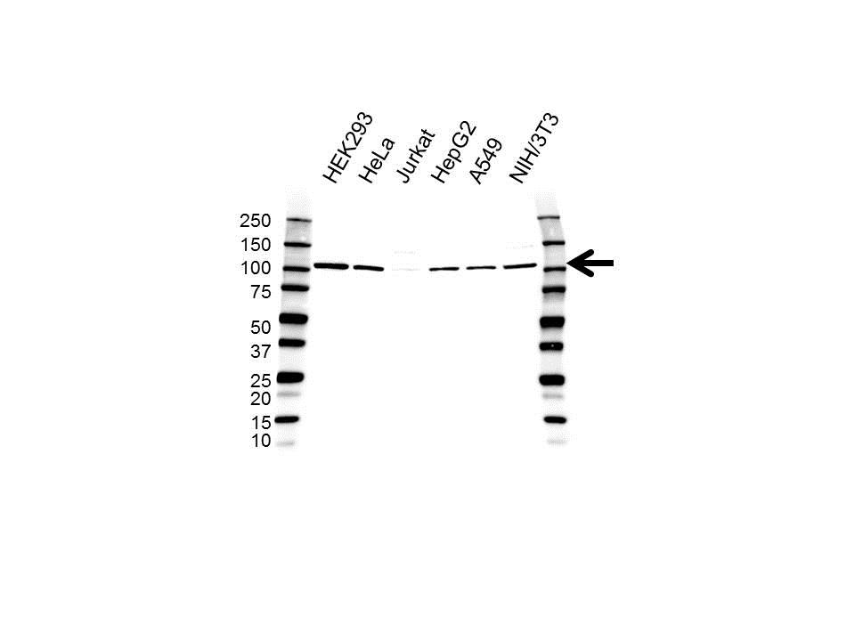 Anti FCP1 Antibody (PrecisionAb Polyclonal Antibody) gallery image 1