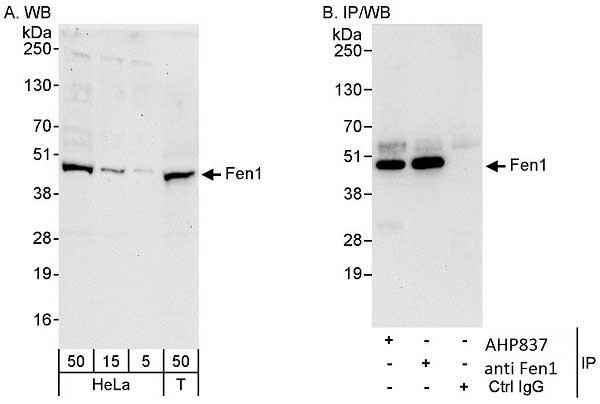 Anti Human FEN1 Antibody gallery image 1