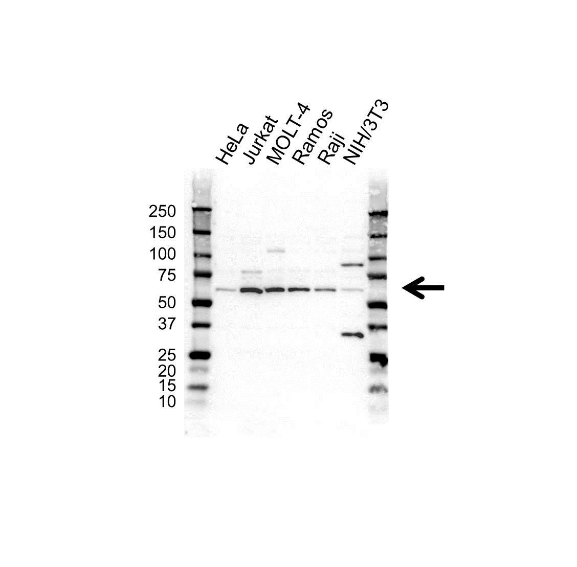 Anti FGR Antibody (PrecisionAb™ Polyclonal Antibody) gallery image 1