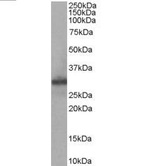 Anti Human FHL1 Antibody thumbnail image 1