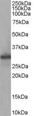 Anti Human FHL1 Antibody gallery image 1