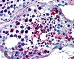 Anti Human FHL1 Antibody thumbnail image 2