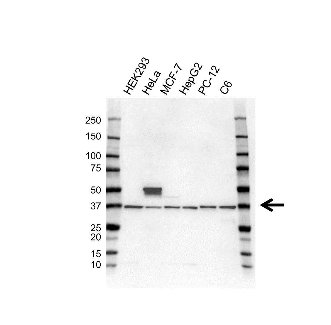Anti Fibrillarin Antibody (PrecisionAb Polyclonal Antibody) gallery image 1