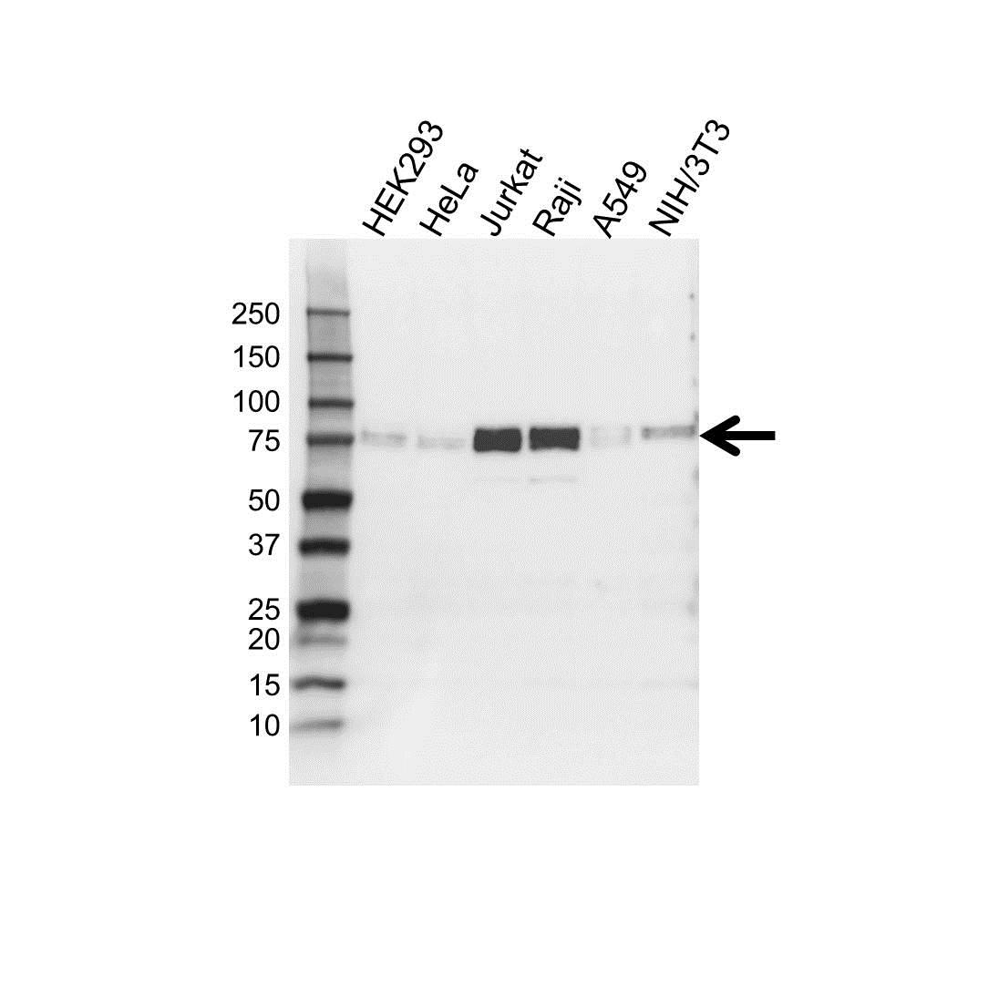 Anti FIP1L1 Antibody (PrecisionAb Polyclonal Antibody) gallery image 1