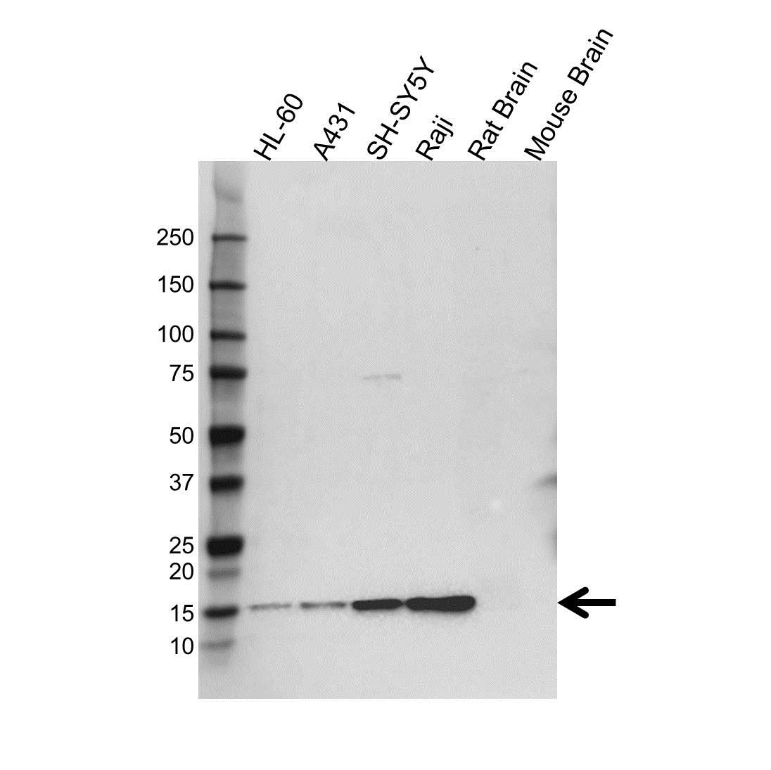 Anti FKBP1A Antibody (PrecisionAb Polyclonal Antibody) gallery image 1