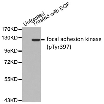 Anti Focal Adhesion Kinase (pTyr397) Antibody gallery image 1