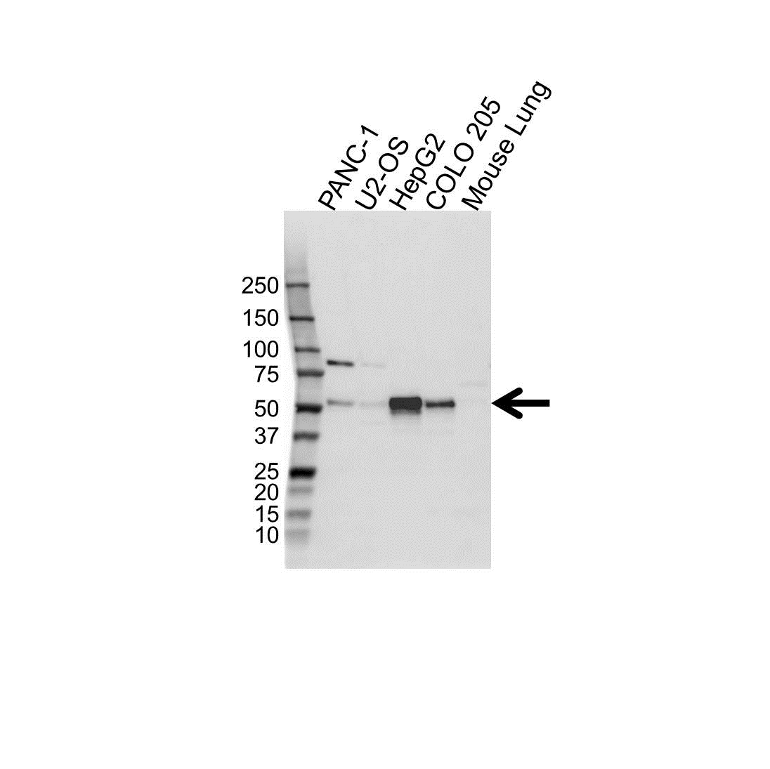 Anti FOXA1 Antibody (PrecisionAb Polyclonal Antibody) gallery image 1