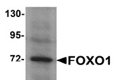 Anti FOXO1 Antibody thumbnail image 2