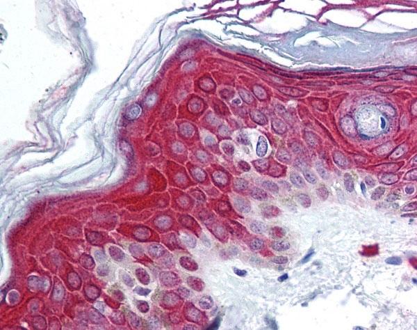 Anti FOXO3A Antibody gallery image 1