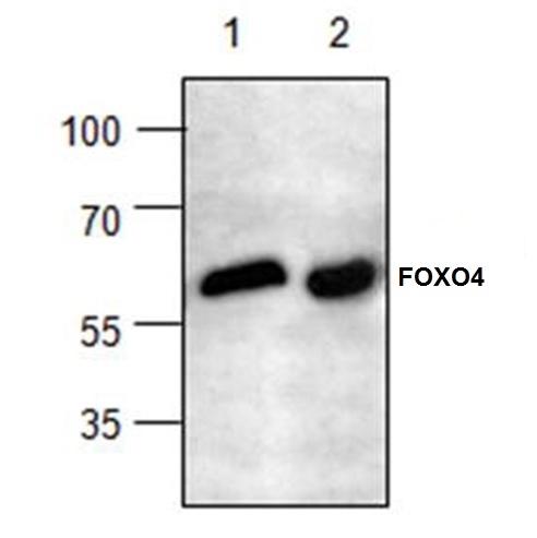 Anti FOXO4 Antibody gallery image 1