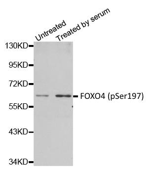 Anti FOXO4 (pSer197) Antibody thumbnail image 1
