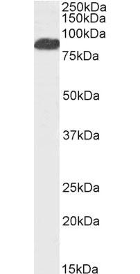 Anti Human FOXP2 (C-Terminal) Antibody gallery image 1