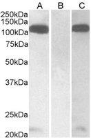 Anti Human Furin (C-Terminal) Antibody gallery image 1