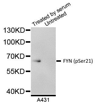 Anti FYN (pSer21) Antibody gallery image 1