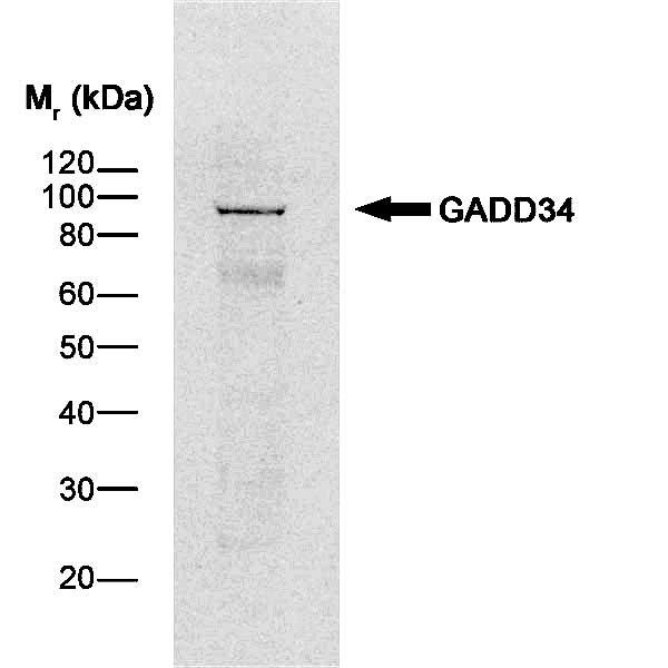 Anti Human GADD34 Antibody thumbnail image 1