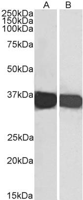 Anti Human GAPDH (C-Terminal) Antibody thumbnail image 1