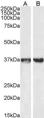 Anti Human GAPDH (C-Terminal) Antibody thumbnail image 2