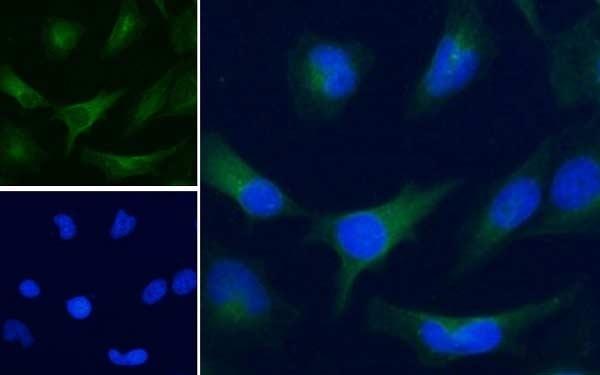 Anti Human GAPDH (C-Terminal) Antibody thumbnail image 3