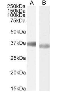 Anti Human GAPDH (C-Terminal) Antibody thumbnail image 4