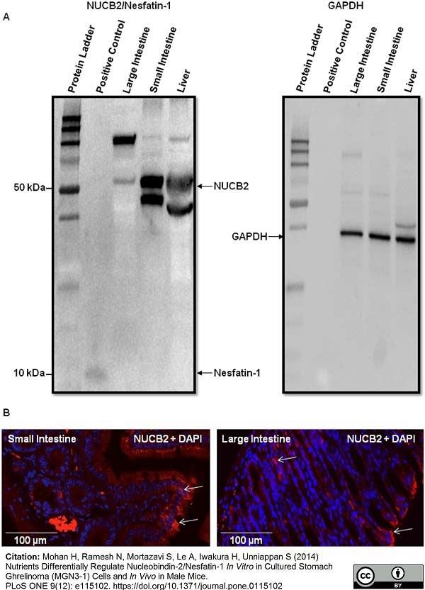 Anti GAPDH (N-Terminal) Antibody thumbnail image 6