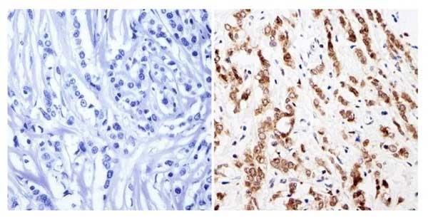 Anti GATA1 Antibody thumbnail image 3