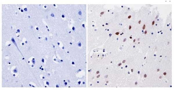 Anti GATA1 Antibody thumbnail image 4