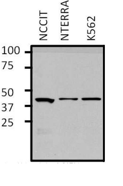 Anti GATA1 Antibody thumbnail image 6