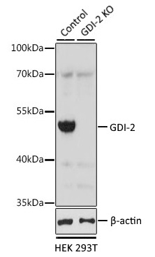 Anti GDI-2 Antibody gallery image 1