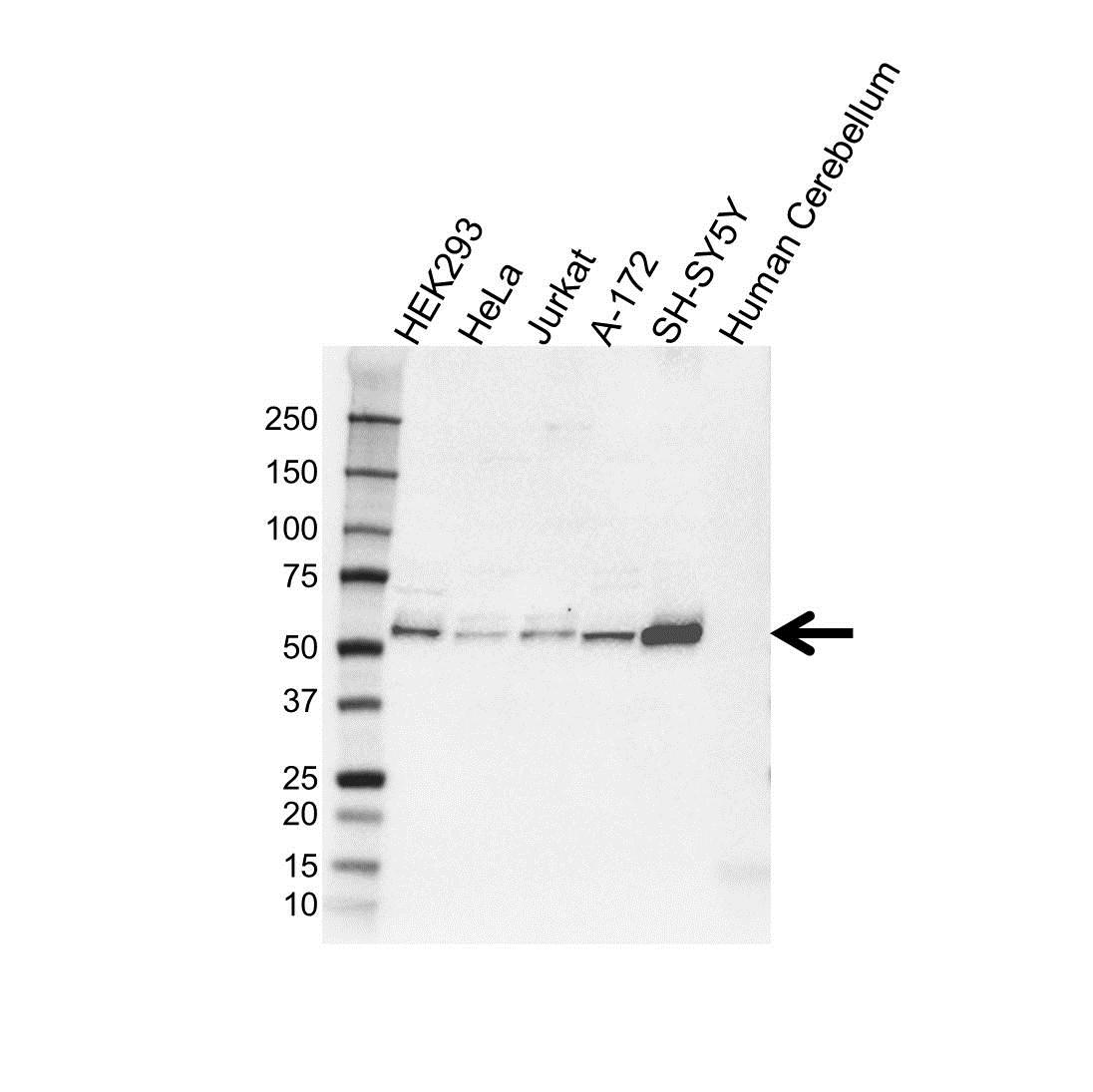 Anti GDI1 Antibody (PrecisionAb Polyclonal Antibody) gallery image 1