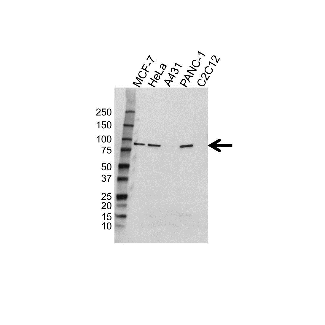 Anti Gelsolin Antibody (PrecisionAb™ Polyclonal Antibody) gallery image 1
