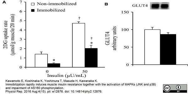 Anti Glucose Transporter 4 Antibody thumbnail image 2