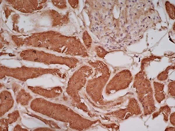 Anti Human Glucose Transporter 5 Antibody thumbnail image 3