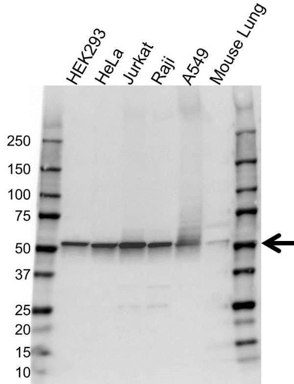 Anti Glutathione Reductase Antibody (PrecisionAb Polyclonal Antibody) gallery image 1