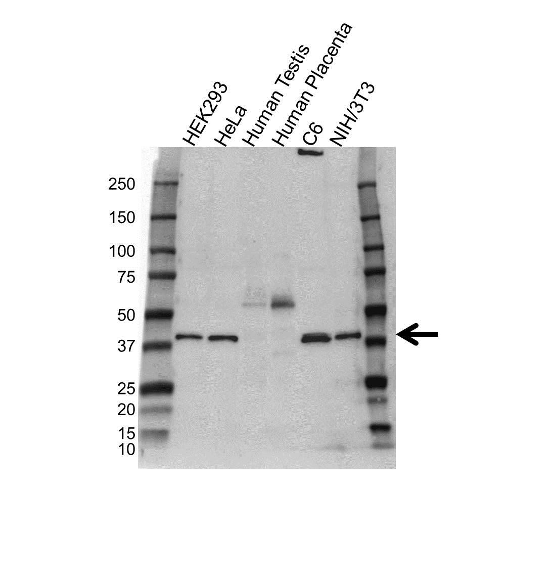 Anti GNA11 Antibody (PrecisionAb™ Polyclonal Antibody) gallery image 1