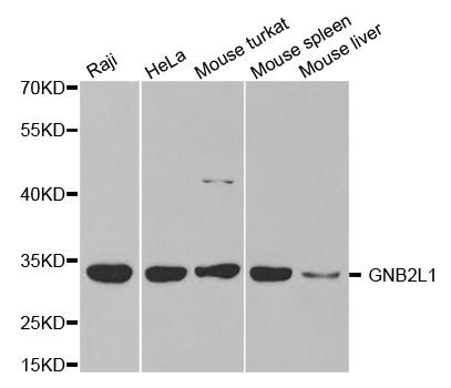 Anti GNB2L1 Antibody thumbnail image 1