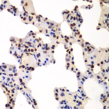 Anti GNB2L1 Antibody thumbnail image 2